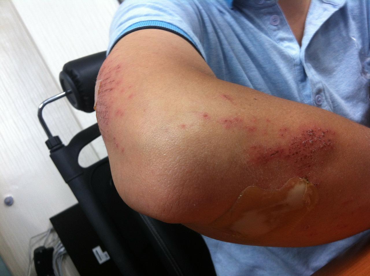refacerea mobilității articulare după accidentare unguent tratamentul artrozei genunchiului