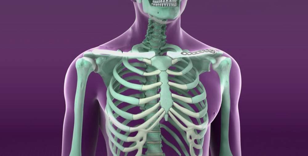 мышечные боли в суставах tratament articular de lingonberry