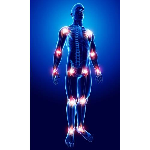 dureri articulare datorate sti unguent cu durere în mușchi și articulații