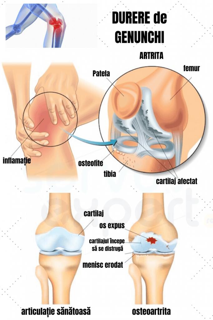 ce exercită dureri în articulațiile genunchiului