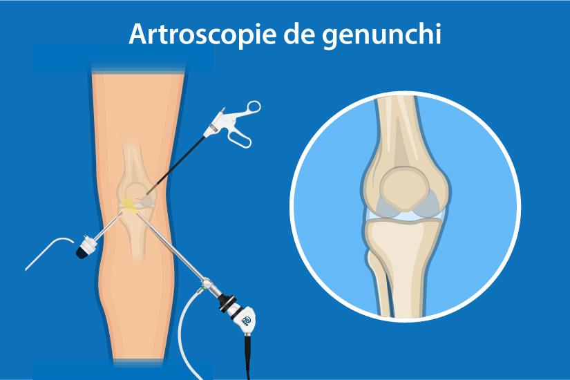complicații după o leziune la genunchi condroză acută a umărului cum să tratezi
