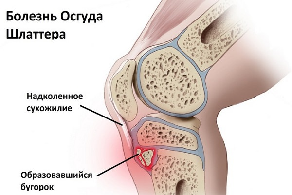 condil al articulației genunchiului artroza artroza gleznei