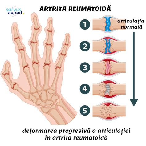 cum să gătească oase pentru tratamentul articulațiilor cauzele artrozei cum se tratează