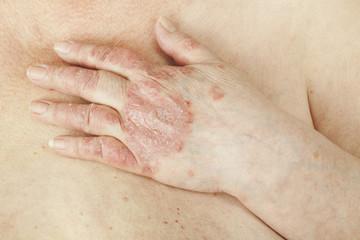 dureri articulare cu artropatie psoriazică