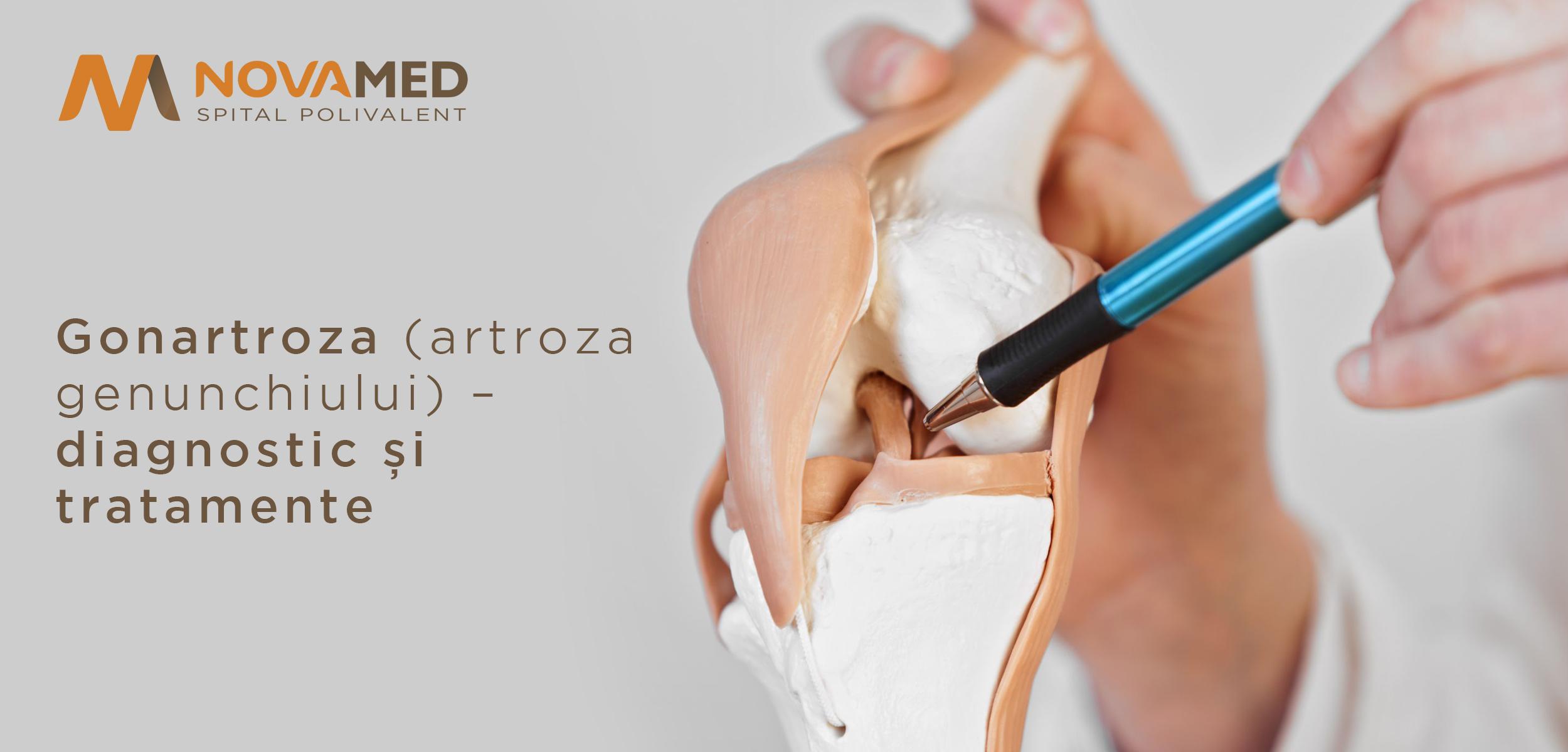 teza artroza genunchiului