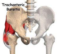 tratament pentru medicamente pentru osteochondroza mamară tratamentul chirurgical al artrozei umărului