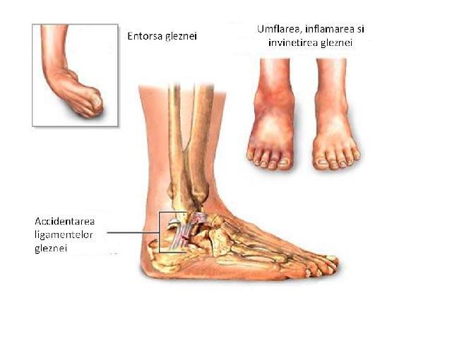 varicoza se umflă picioarele gleznei