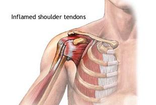 durere în exercițiile articulației umărului stâng amorțeală a mușchilor și a brațului