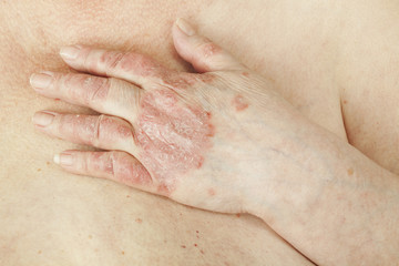 durere la mâna articulației