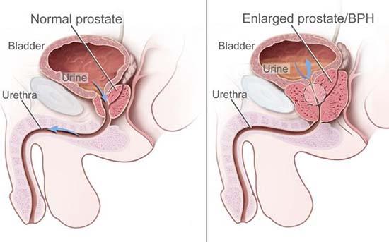 adenom de prostata cauze si simptome