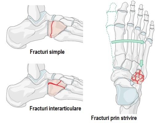durerile articulare ale articulațiilor șoldului
