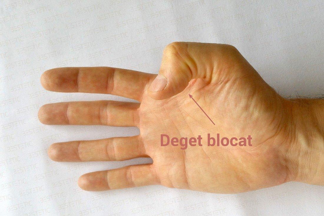 dureri la încheietura mâinii cu flexia degetelor simptome slăbiciune musculară și dureri articulare