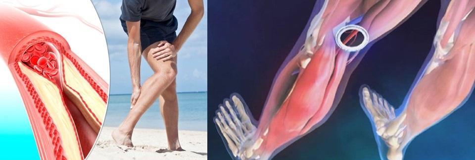 dureri severe la nivelul articulațiilor picioarelor la copii