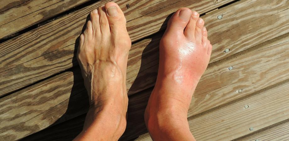 dureri de gleznă umflate Inflamația latului cotului