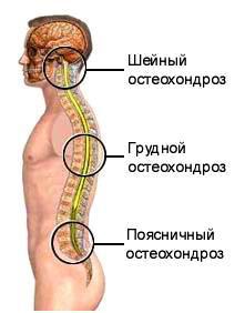 osteocondroza articulației lombare