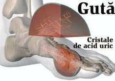 artrita și medicația pentru artroză