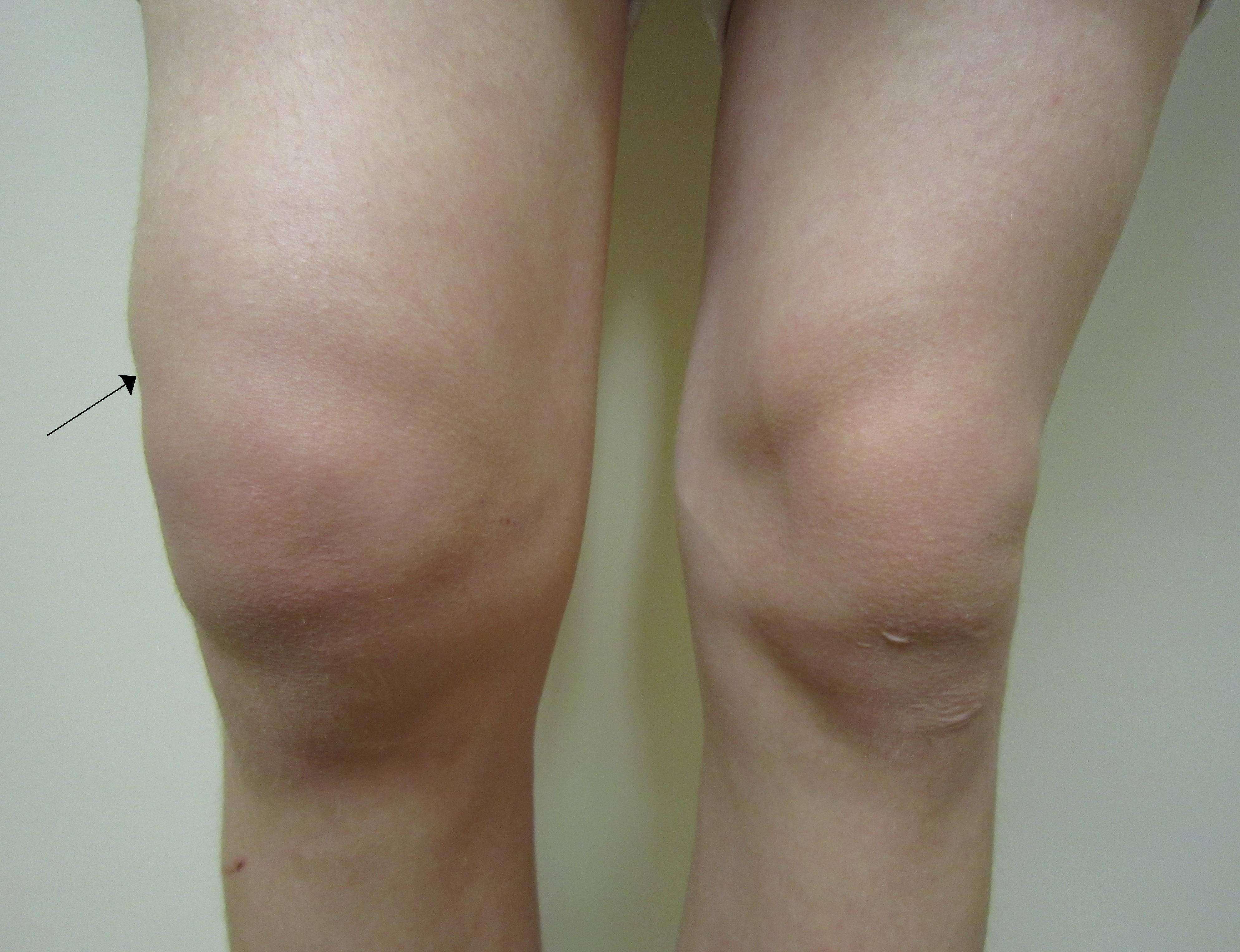 lichid în unguentul articulației genunchiului