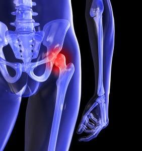 durere în articulația șoldului cu o hernie discală
