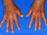 dermatită atopică și dureri articulare