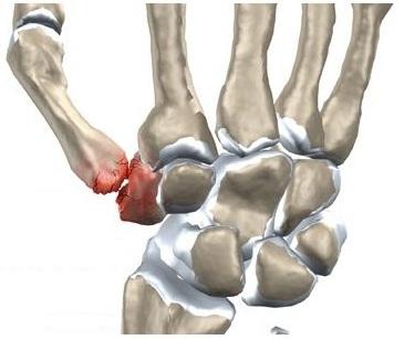 artroza articulației degetului