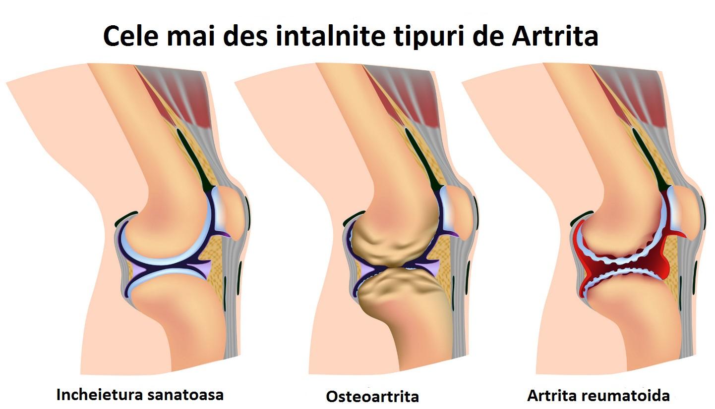 crește pe articulațiile degetelor de la picioare cum se poate îmbunătăți regenerarea cartilajului