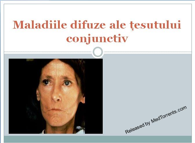 febră în bolile sistemice ale țesutului conjunctiv