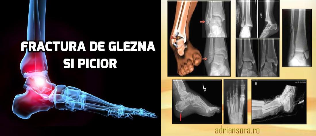 fractură articulară după fractură de gleznă dureri de genunchi unguent diclofenac