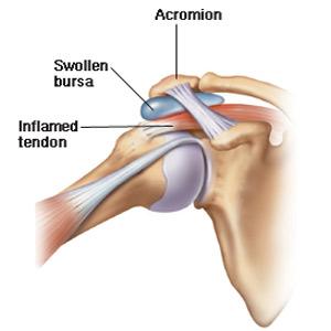tratamentul bolii artrozei umărului