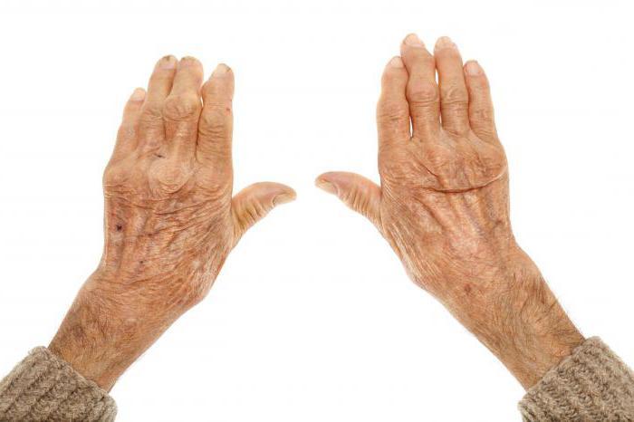 modul de restaurare a preparatelor de țesut cartilaj dureri de șold cauzele și tratamentul