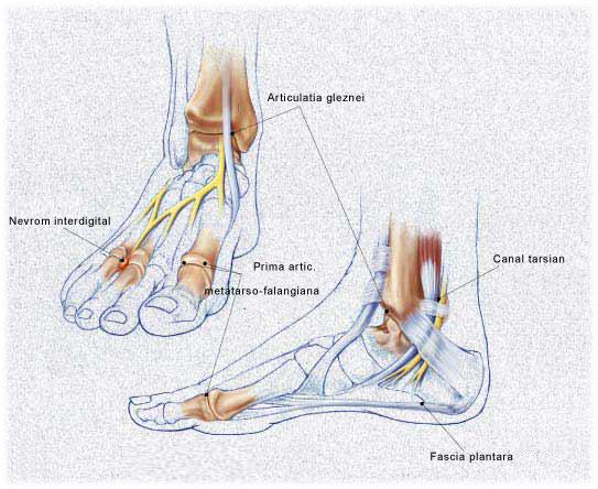 pastile pentru artroza articulației gleznei tratamentul ligamentelor musculare dureri articulare
