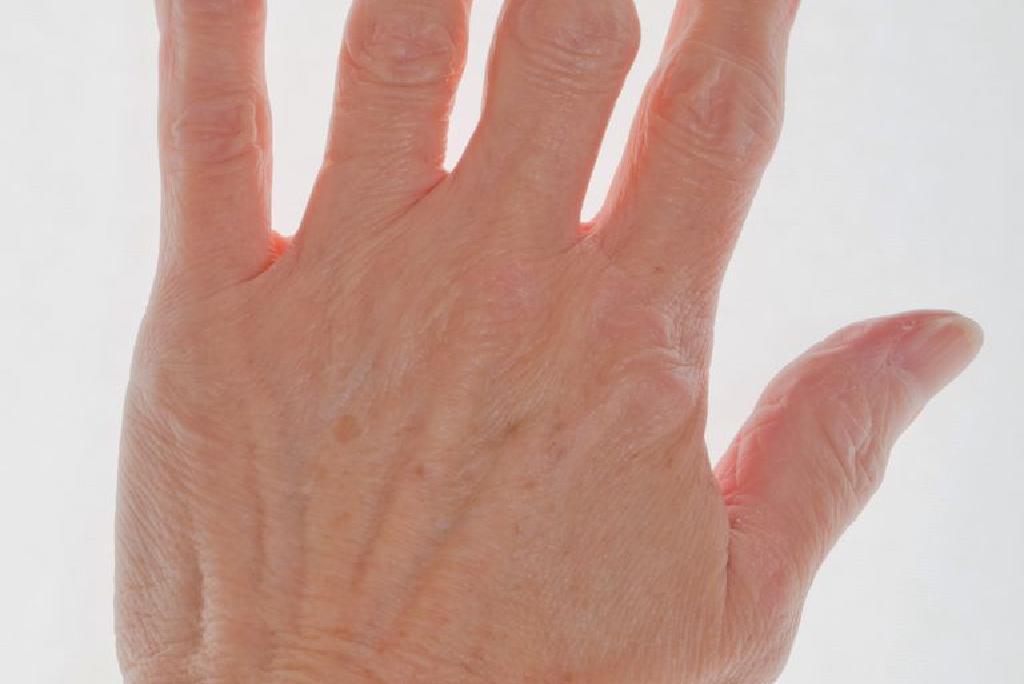 periați tratamentul artritei articulare