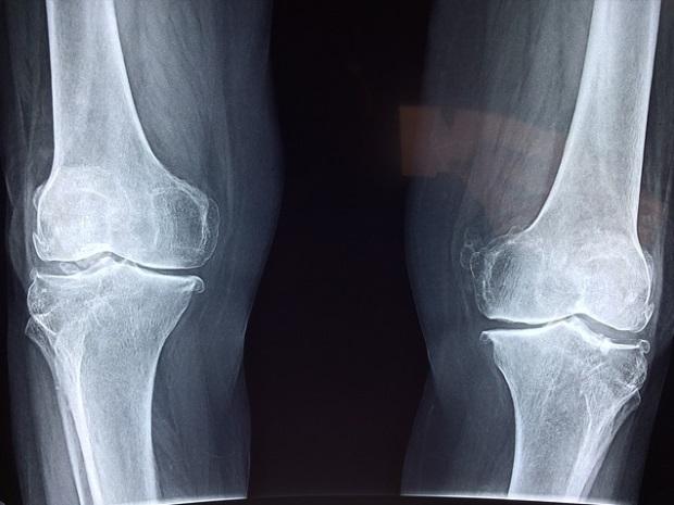 durere în diferite articulații timp de 2-3 zile cum să tratezi boala articulației genunchiului