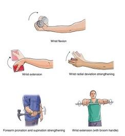 preparate pentru tratamentul epicondilitei articulației cotului