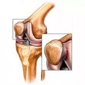teraflex pentru leziuni articulare