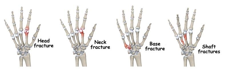 artroză tratament cu injecții de artrită
