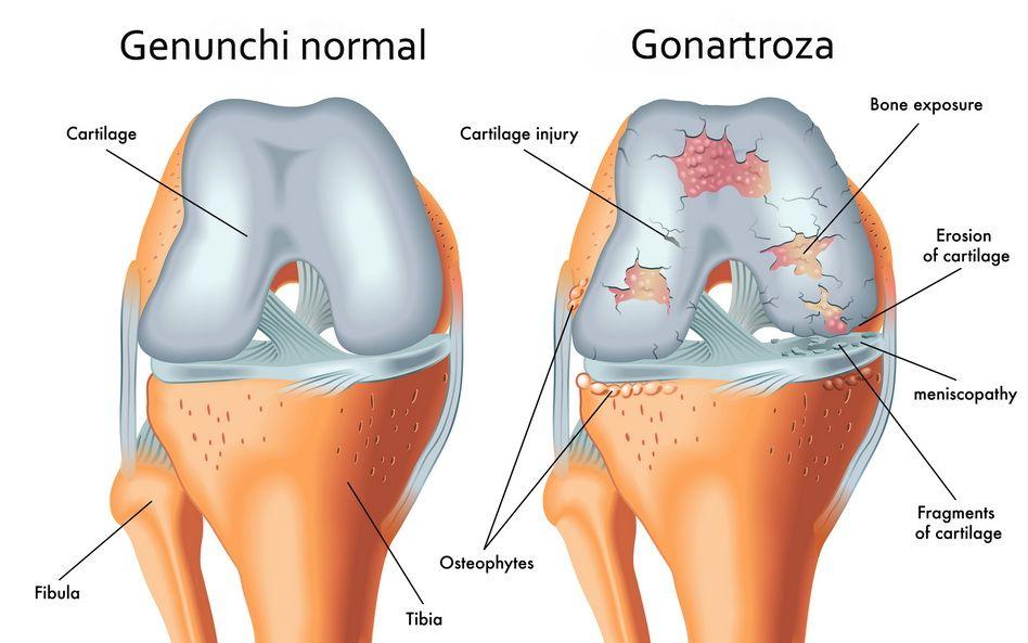 tratamentul artrozei hormonilor articulației genunchiului dureri de șold cu îndoituri înainte