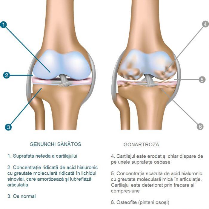 tratamentul artrozei și pintenilor Articulațiile doare de frig?