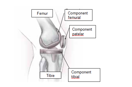 tratamentul endoscopic al genunchiului