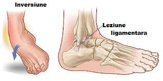 tratamente avansate pentru artroză