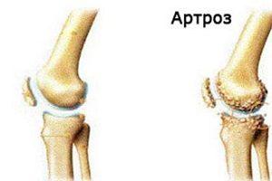 modificări degenerative distrofice în tratamentul articulației genunchiului