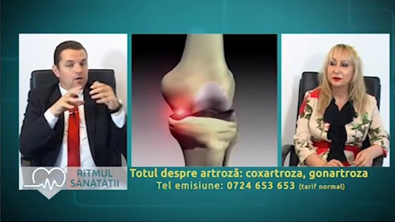 dezvolta articulația după artrită buserelin depot dureri articulare