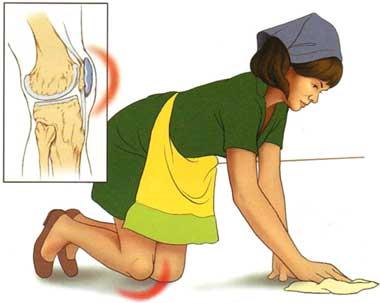rețetă biliară de tratament comun dureri de genunchi după fractură