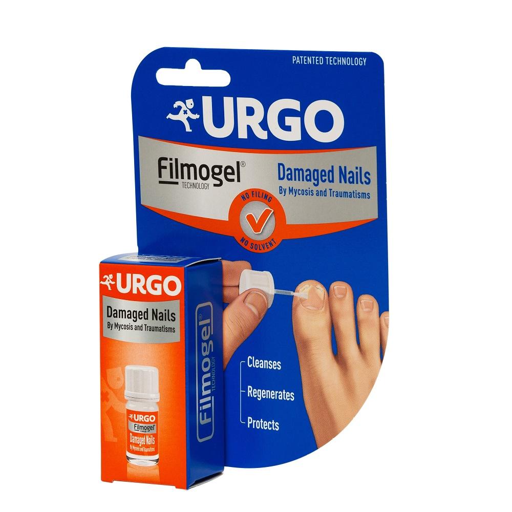 unguent tratare unghiilor unghiile