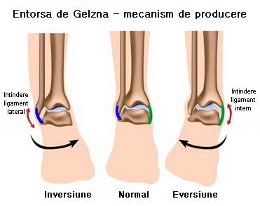 tratament pentru inflamația articulației gleznei