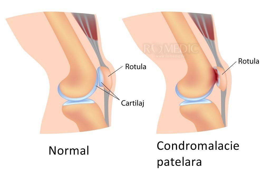 articulații artificiale ale genunchiului ce fel de infecție doare articulațiile