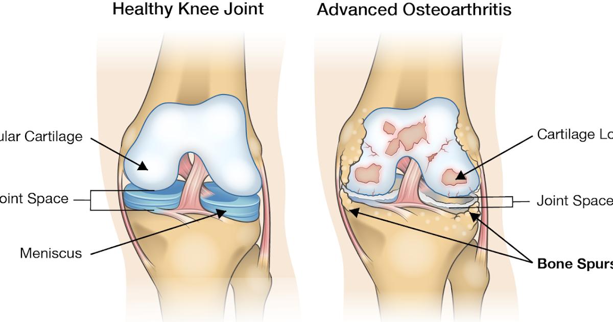 ce unguent să cumpărați pentru articulații stare generală de rău musculară dureri articulare