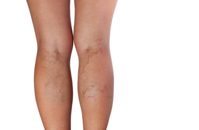 varicoză pe picioare unguent pentru prevenire