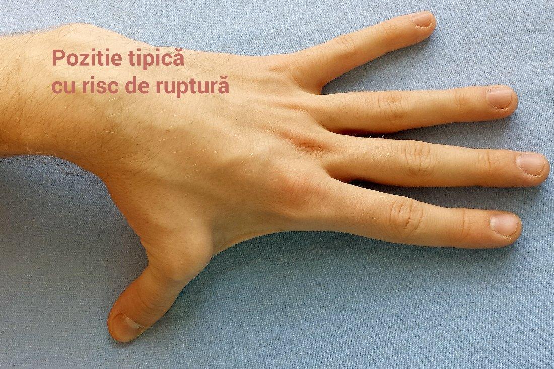 dureri articulare severe cu leucemie dureri articulare la nivelul feței