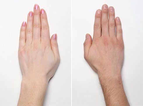 anchilozanta degetelor de la maini artroză proastă pentru a trata a