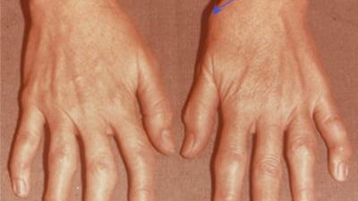 tratarea artrozei degetului mare a tras o articulație decât să trateze